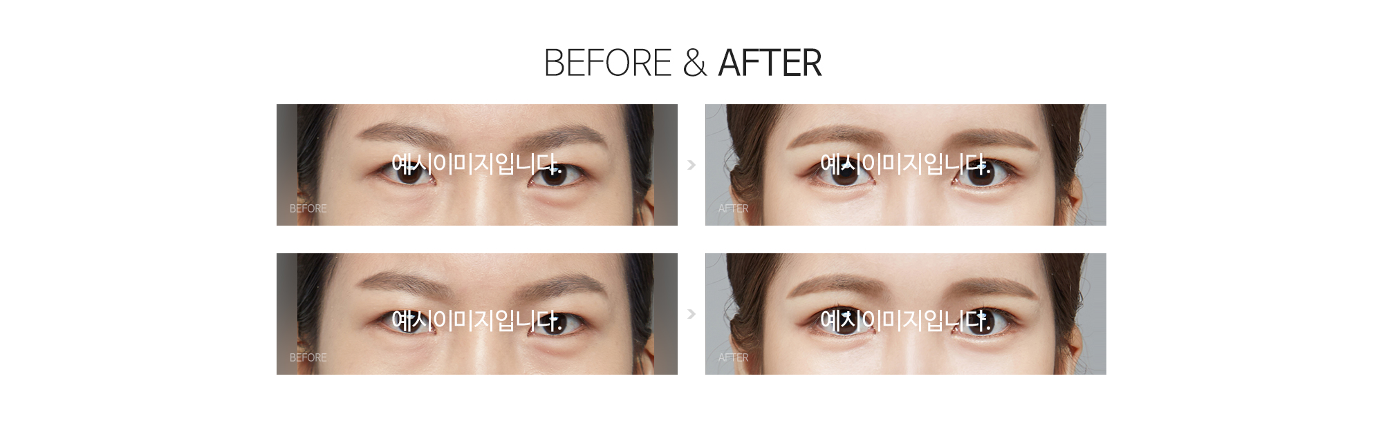 Before & After 이미지
